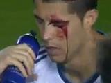 Криштиану Роналду потерял зрение в матче с «Леванте» (ВИДЕО)