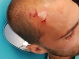 Игроки лиссабонского «Спортинга» подверглись нападению фанатов (ФОТО)