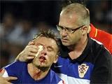 Ивица Олич: «Сейчас я похож на боксера, который был побит братьями Кличко»