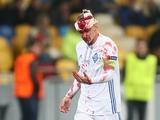 Леонид Миронов: «С Видой все нормально: наложили около 10 швов, сотрясения мозга нет»