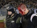 Матч в Белграде сопровождался кровавым побоищем (ВИДЕО)