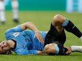 Эдинсон Кавани не сыграет против сборной Франции