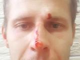 Ветераны АТО взяли на себя избиение арбитра Иванова (СКРИН)