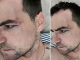 Анте Кулушич показал своё лицо после драки с Жерсоном Родригесом (ФОТО)