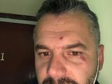 Болельщик показал фото с последствиями потасовки на НСК «Олимпийский»