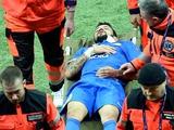 Матеус в финале Лиги Европы получил перелом носа и ушиб головы (ФОТО)