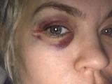 «Сломал кровать о мою голову»: бывшая жена Алиева заявила о новом избиении (ВИДЕО)