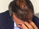 Матч «Фенербахче» — «Бешикташ» закончился пятью швами, наложенными на голову Шенолу Гюнешу (ФОТО, ВИДЕО)
