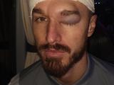 Игрок «Кардиффа» опубликовал фото головы после столкновения с одноклубником (ФОТО)